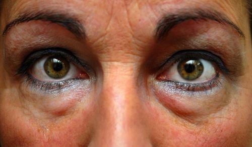 skin-care-eyes
