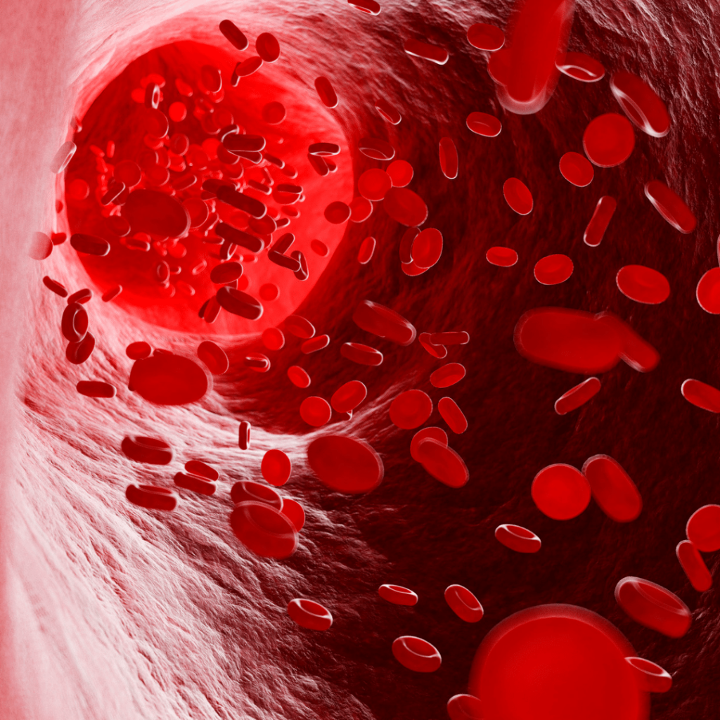 Anemia is characterized by an iron deficiency that reduces the body's ability to transport oxygen to the cells.